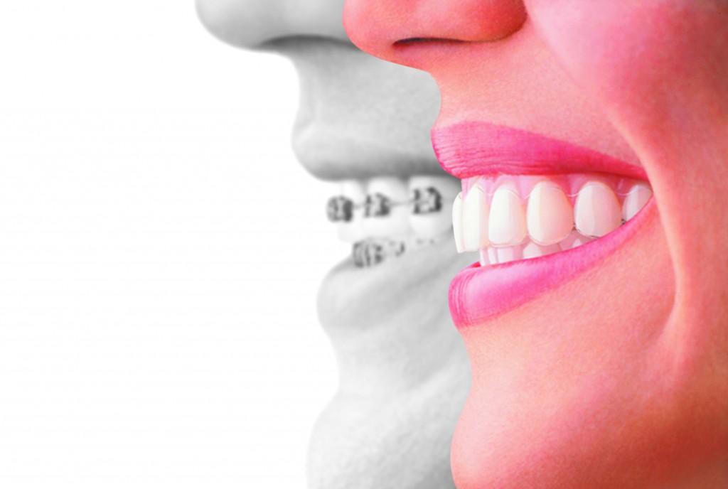 Invisalign compare to braces