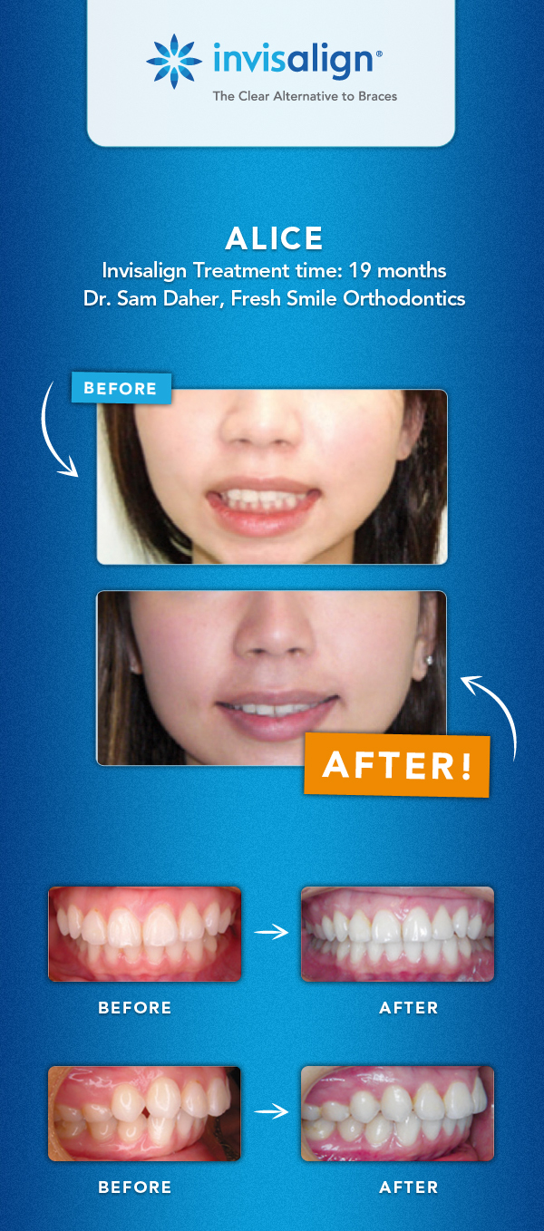 Give Your Teenager Straight Teeth With A Dose Of Self Confidence ...